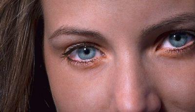 Tørre og såre øyne